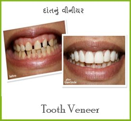 Cosmetic Dentistry In Mehsana