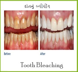 Best Dental Clinic In Mehsana