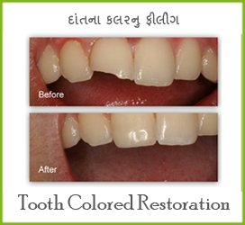 Best Teeth Clinic in Mehsana