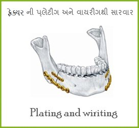 Best Oral Surgeon in Mehsana