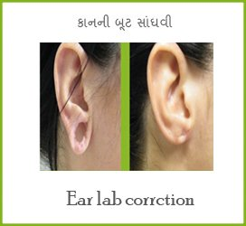 Wisdom Tooth Removal In Mehsana
